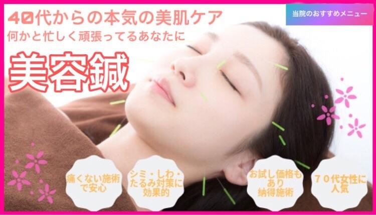 美容鍼トップ