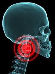 頚椎危険信号画像